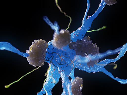 Un tratamiento de neuromodulación ralentiza la pérdida de memoria en Alzheimer