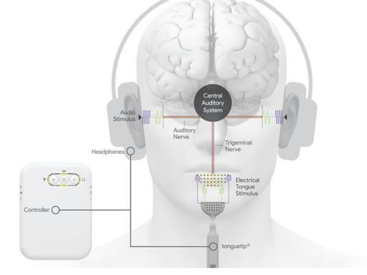 Tratando tinnitus a través de la lengua con electroestimulación