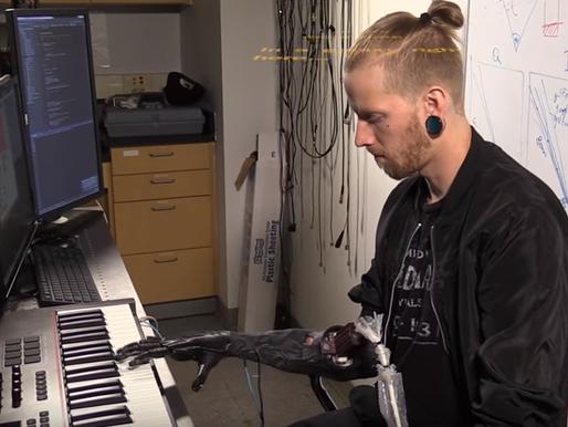 Control preciso de un brazo biónico  con ultrasonidos