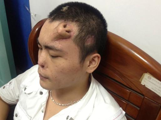 Consiguen crecer una nariz en la frente de un paciente para reemplazar su propia nariz