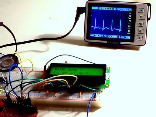 Proyecto para esta semana Santa: construir tu propio sensor de electrocardiograma