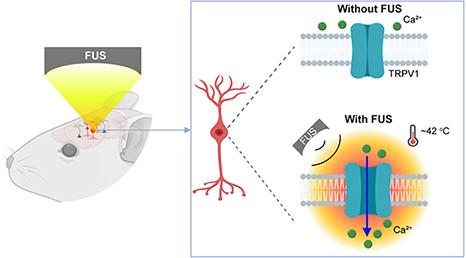Sonothermogenetics: estimulación profunda no invasiva de distintas regiones del cerebro