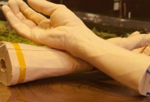 Google trabaja en desarrollar una pulsera para detectar cáncer