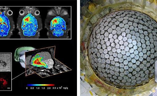 Usando ultrasonidos para llevar fármacos hasta el cerebro