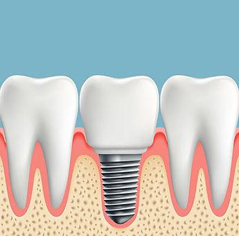 dentalimplant.jpg