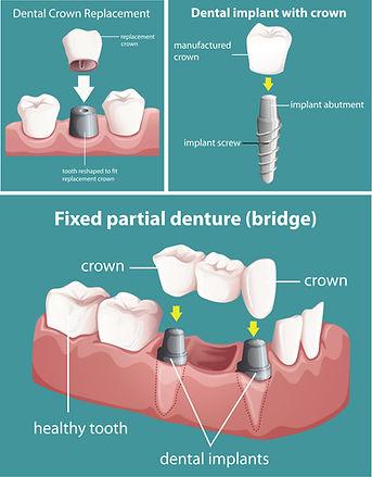 20200524 implant graphic.jpg