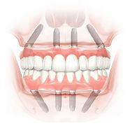 all-on-4-implants.jpg