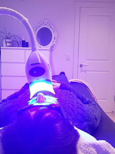 Blue LED Teeth Whitening🦷 ✔Chemical Fre