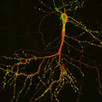 Special Research Topic for Frontiers in Molecular Neuroscience
