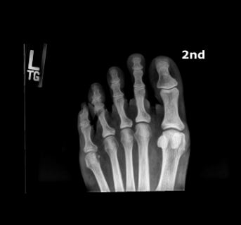 X-Ray Toes