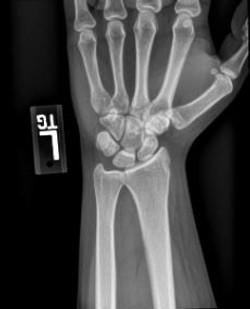 X-Ray Left Wrist