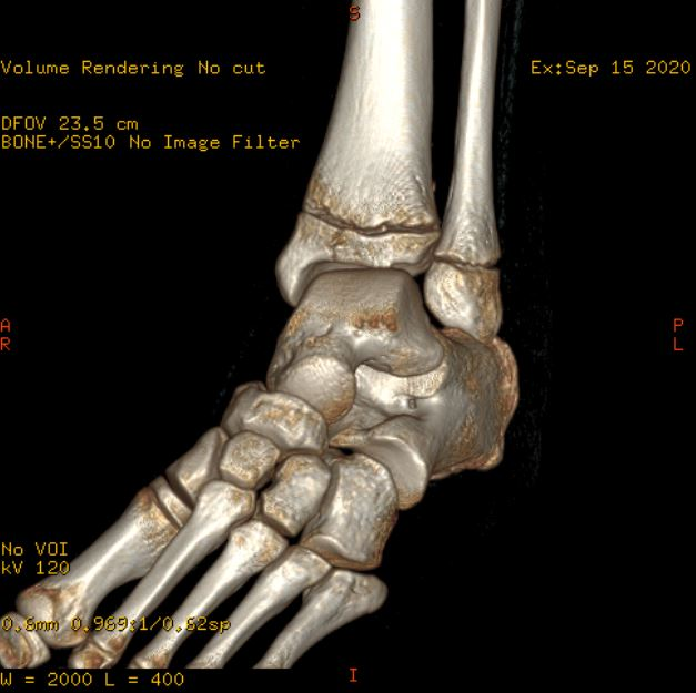 3D CT LEFT ANKLE