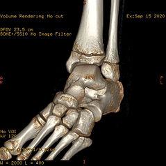 3D CT LEFT ANKLE.JPG