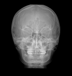 X-Ray Facial Bones