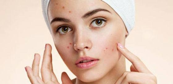 Acne-Treatment02_09_2017_04_13_23.jpg