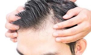 male-pattern-baldness-treatment.jpg