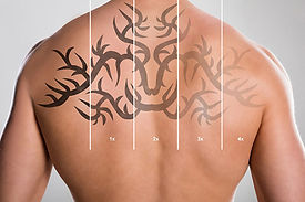 on-demand-laser-tattoo-removal-dr-louis-