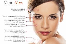 Venus-visa-skin-resurfacing-on-Maui-1024