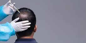 PRP hair Loss.jpg