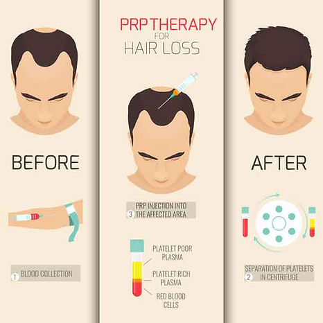 sitemgr_PRP-for-hair-loss-mens-injection