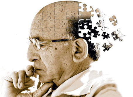 In Research Probiotics Help Alzheimers Sufferers