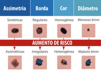 ABCD melanoma.png