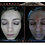 A-One Lite Simple | Innovative Skin Analysis Machine | Multi-Language Supported | Instantly Collects Facial Data