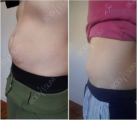 fat freezing before and after Bodi Slim courses & training