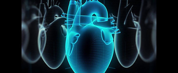 implantado primer corazon artficial.jpg