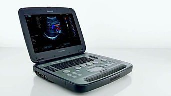 acuson-p500-ultrasound-04140774_10-06588