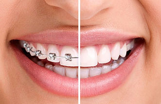 Ortodoncia-Dental-Bracket.jpg