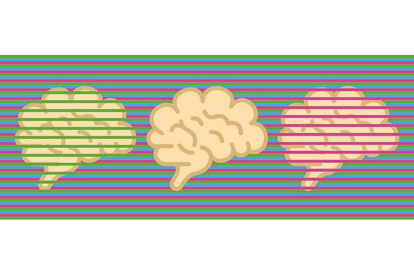 Three brain images.jpg