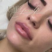 lip bruise.png