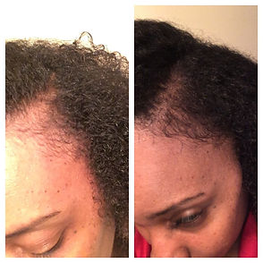 Bald spot comparison 3 weeks after using Goddess Growth Oil