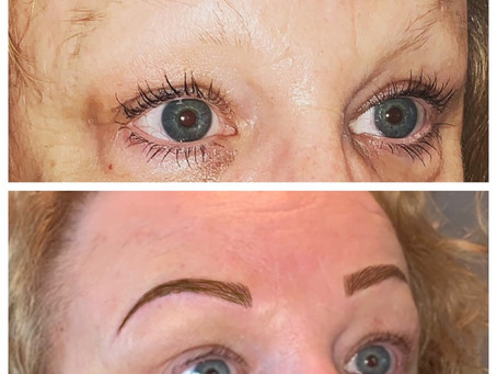 Brows for alopecia sufferers..