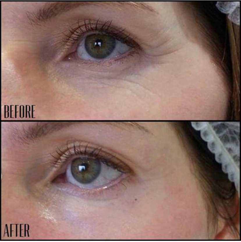 Micro needling collagen induction facial