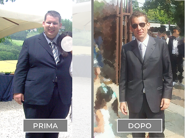 Andrea-C-Paziente-Gastric-Bypass-2-Dr-An