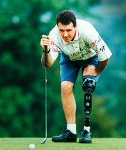 Former junior rugby star Colin Price who lost his leg due to gas gangrene