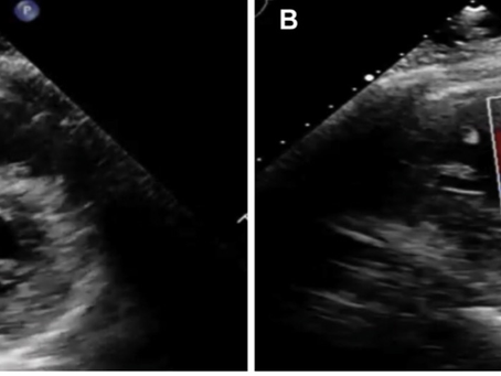 COVID-19 presents with Pulmonary Embolism