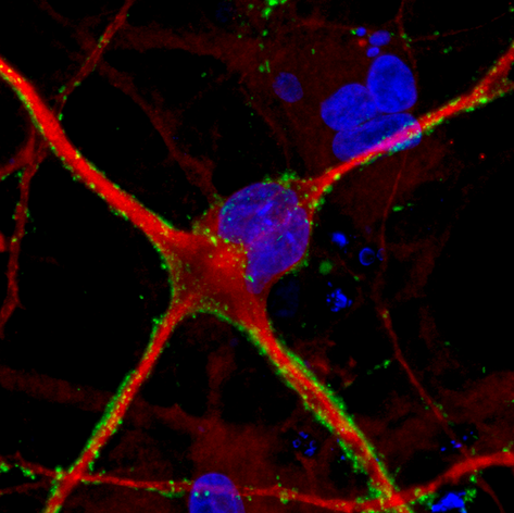 A StemoniX hiPSC-derived astrocyte