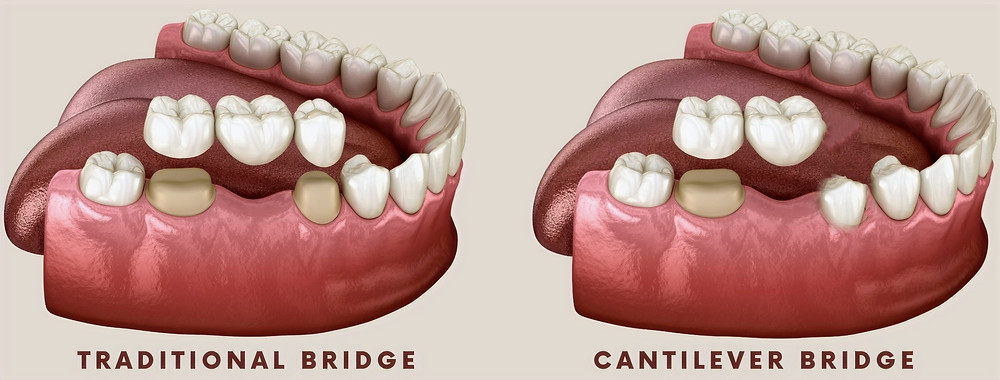 Cantilever Tooth Bridge VS Traditional Bridge