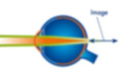 LASERVISION ANGOULEME Schéma de l'astigmatisme