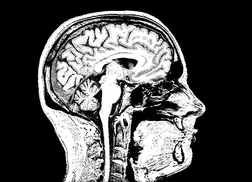 Pursue Whether Gd Depositions are in the Brain on MRI?