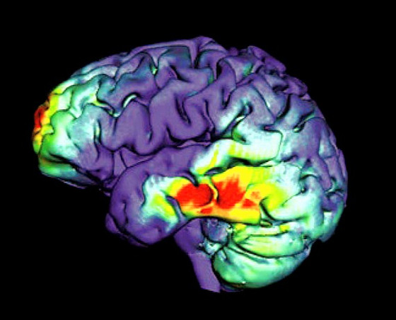 What is the Importance of Gadolinium Observed in the Brain on MRI?