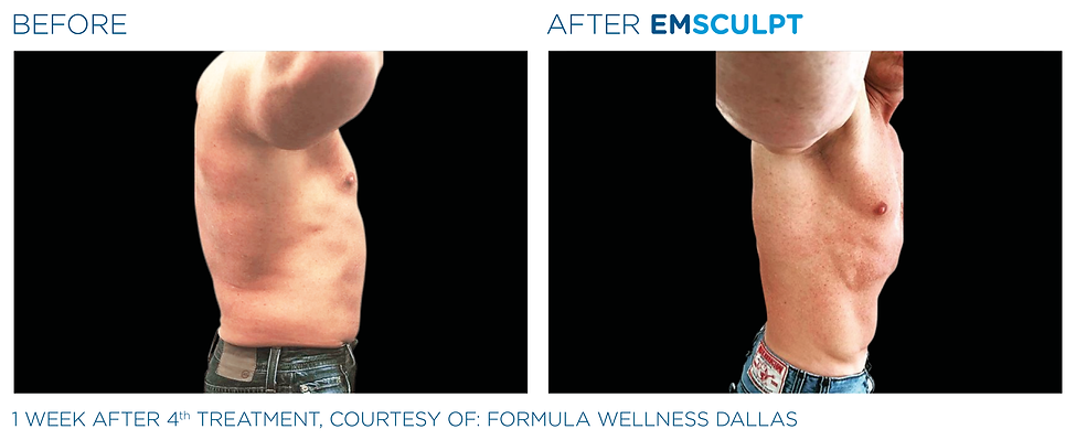 Emsculpt_PIC_Ba-card-male-abdomen-097_EN