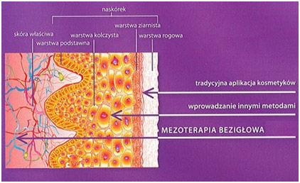 mezoterapia_bezigłowa.jpg
