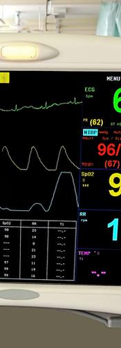 EKG TECHNICIAN