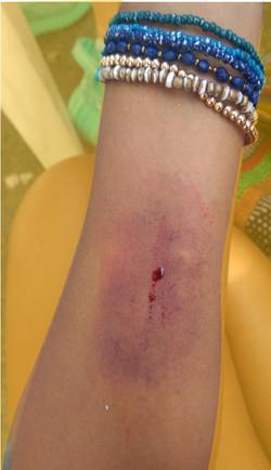 wound 3-01