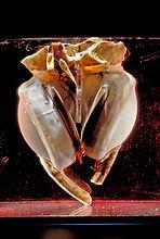 Liotta-Cooley Artificial Heart © Copyright Smithsonian