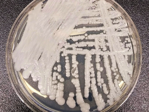 CANDIDA AURIS OUTBREAK IN THE UNITED STATES